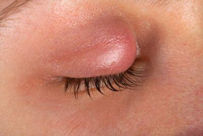 Augenentzündung Lid
