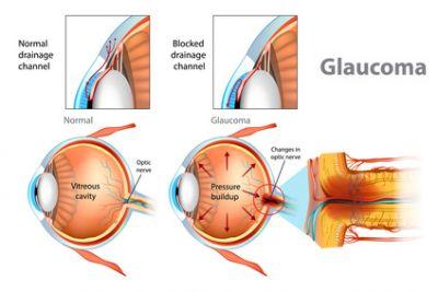 Glaukom / Grüner Star